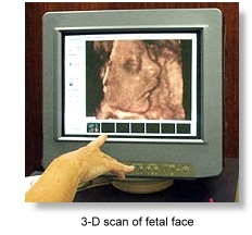 3-D scan of fetal face