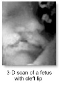 3-D scan of a fetus with cleft lip