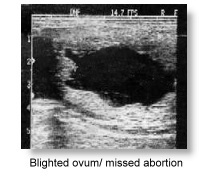 Blighted ovum/missed abortion